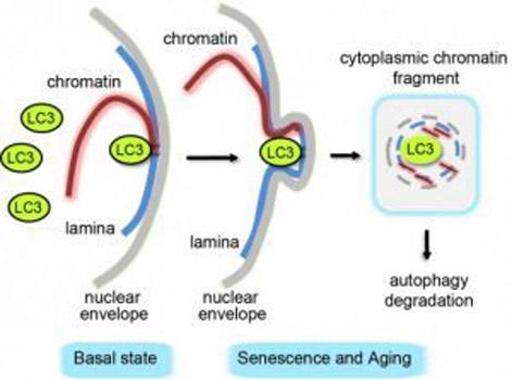 Schematic illustration of autophagy degradation of nuclear lamina.