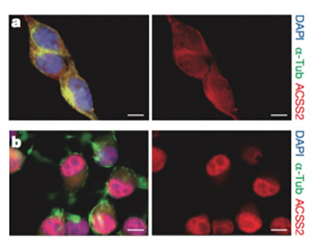 ACSS2 translocates to the nucleus during neuronal differentiation.
